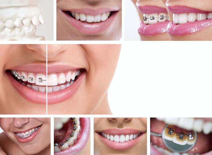 Chỉnh nha niềng răng đem đến hàm răng thẳng đều