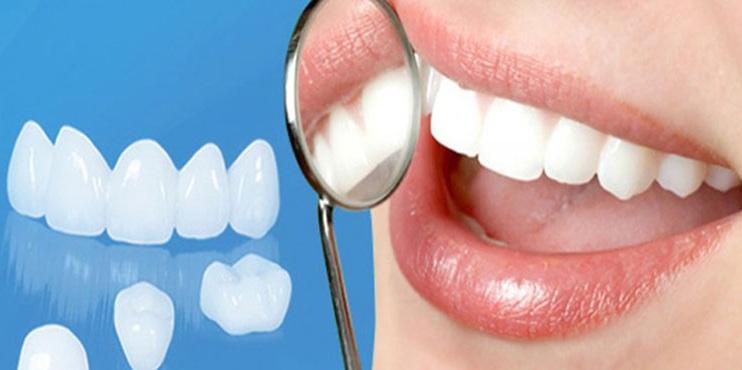 Phục hình răng sứ - Vẻ đẹp hoàn mỹ