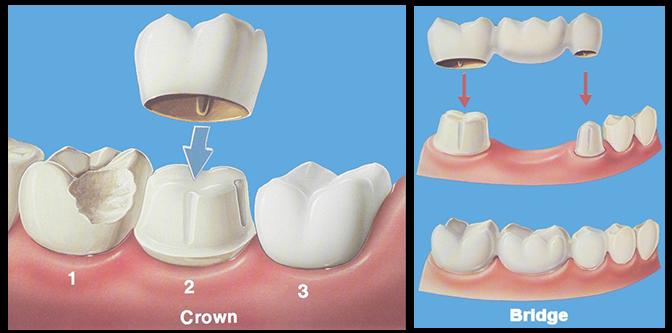 Phục hình răng sứ là như thế nào?