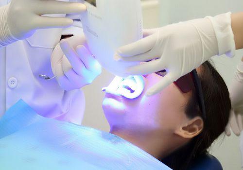 Tẩy trắng răng bằng công nghệ ánh sáng lạnh Plasma