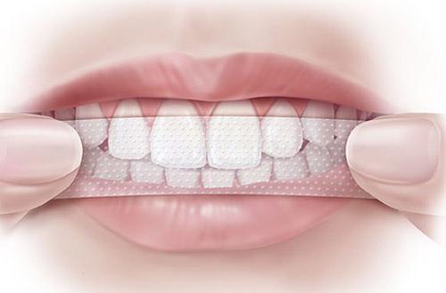 Tẩy trắng răng giúp lấy lại nụ cười tỏa sáng
