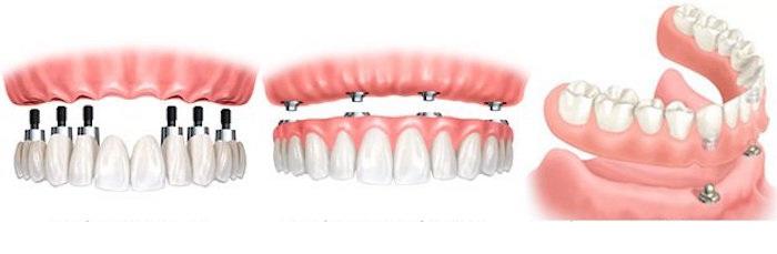 Trồng răng Implant - phục hồi hoàn hảo chiếc răng bị mất