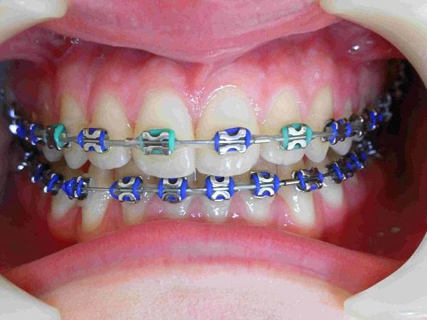 Niềng răng mắc cài kim loại đem lại hiệu quả chỉnh nha vượt trội