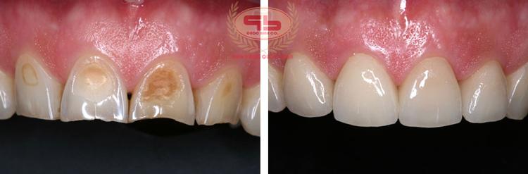<em>Trám răng thẩm mỹ bằng Composite – Những điều cần biết</em>