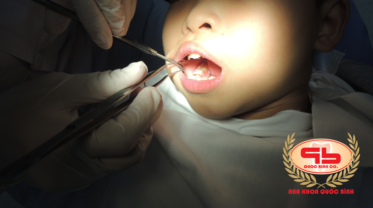 Are tooth decay in children dangerous?