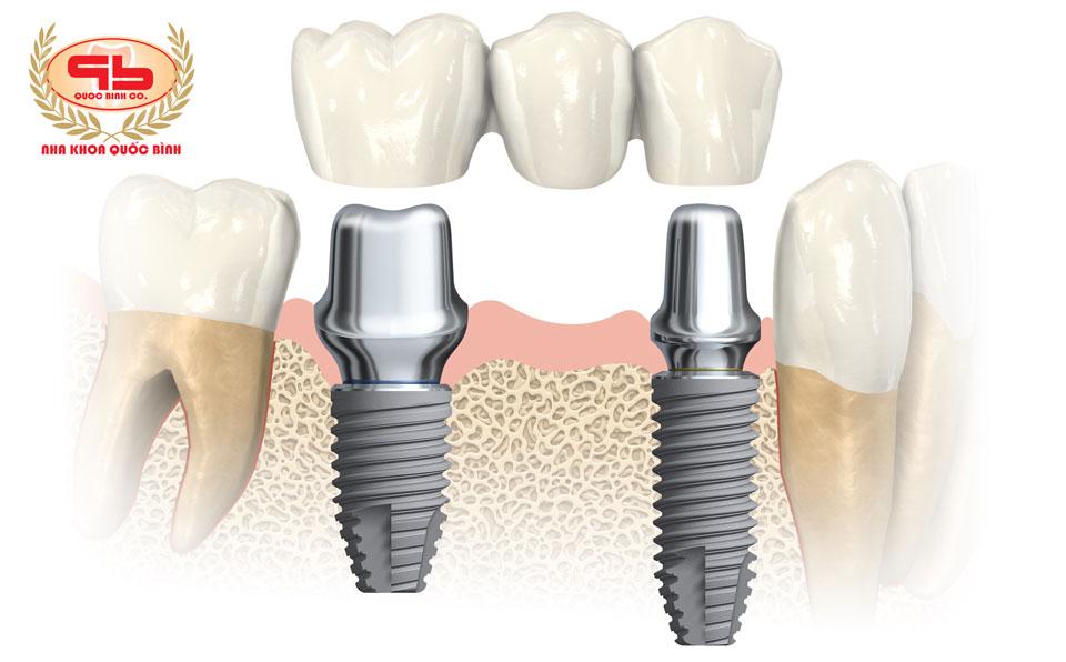 Cầu răng giả trên Implant