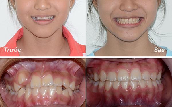 Niềng răng uy tín ở Vũng Tàu