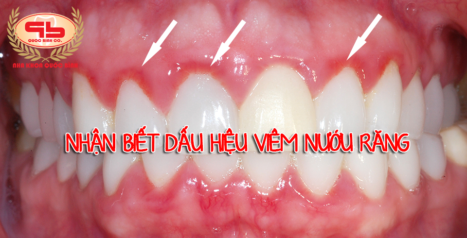Những dấu hiệu viêm nướu răng dễ nhận biết và cách phòng ngừa.