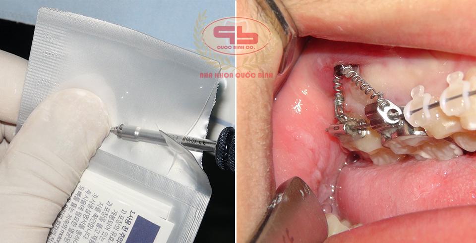 Những lưu ý khi điều trị niềng răng với minivis
