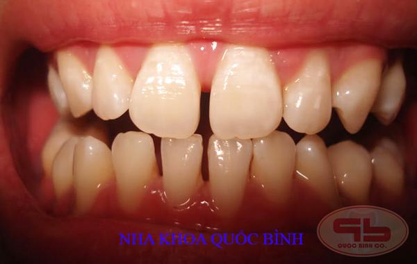 Răng thưa, kích cỡ các răng nhỏ, có thể không cần mài khi làm răng sứ thẩm mỹ