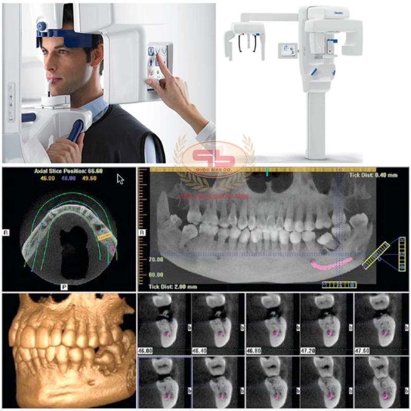 Có cần thiết chụp CT Cone beam trước khi làm Implant?