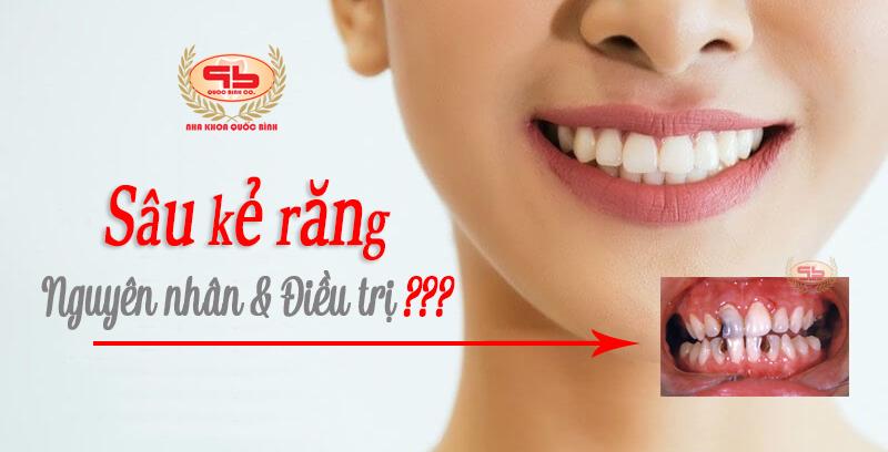 Sâu kẻ răng và điều trị hiệu quả như thế nào?