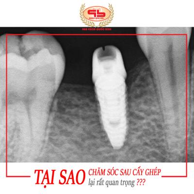 Vậy tại sao chăm sóc răng sau khi làm Implant lại rất quan trọng❓❓❓