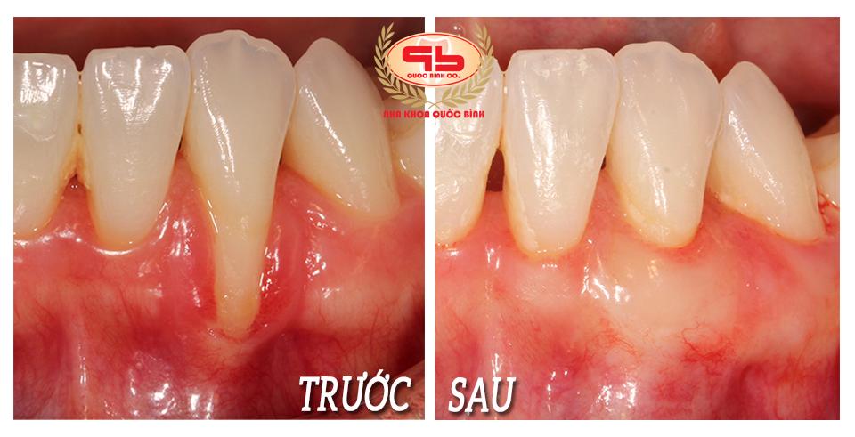 Phẫu thuật ghép nướu điều trị tụt nướu hở cổ chân răng