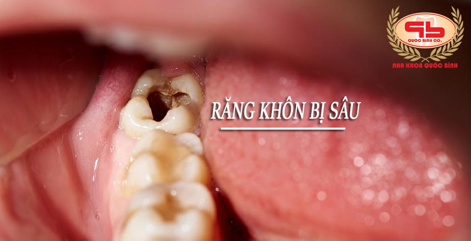 Răng khôn bị sâu phải làm sao?