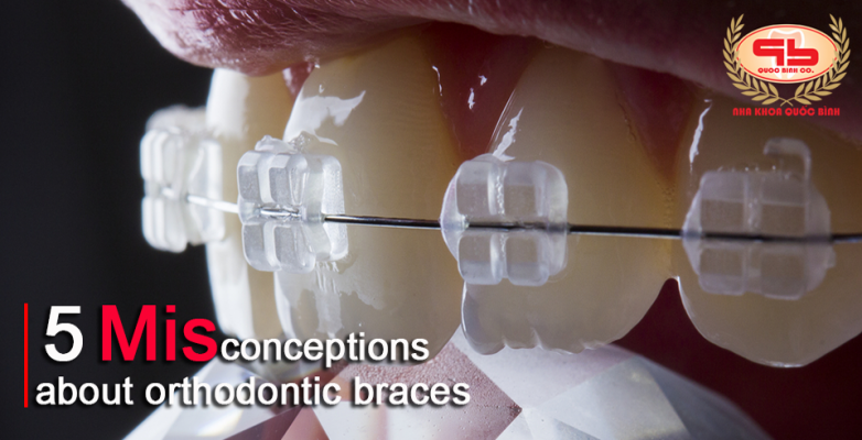 5 Misconception about braces that many people often mistakenly believe