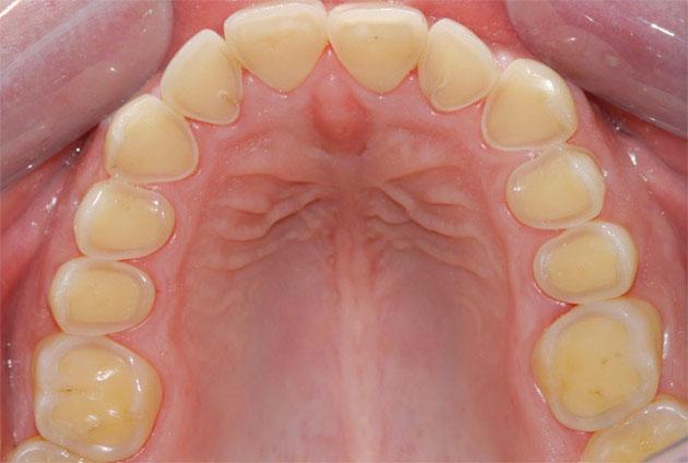 Chất lượng răng sứ không phù hợp gây mòn mặt nhai
