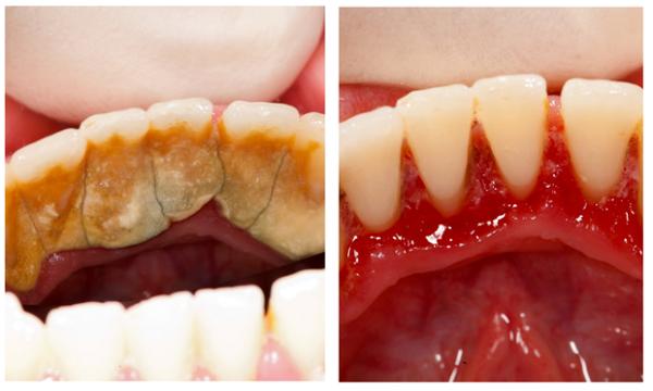 Vôi răng đóng quá dầy làm tụt nướu và chảy máu chân răng