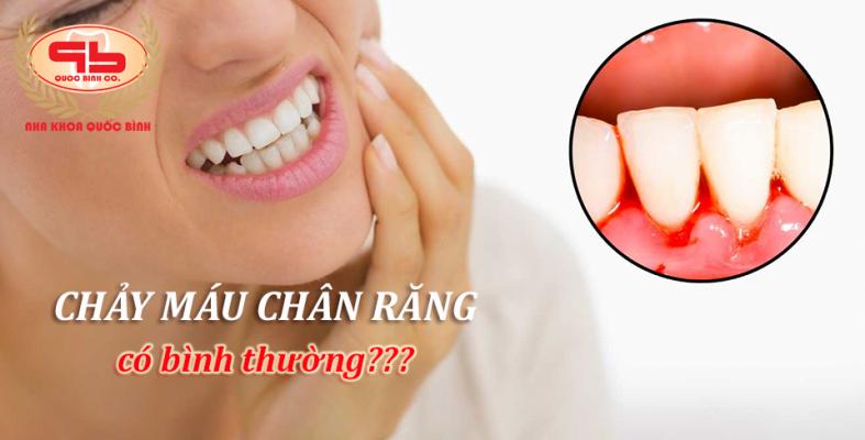 Chảy máu chân răng có bình thường?