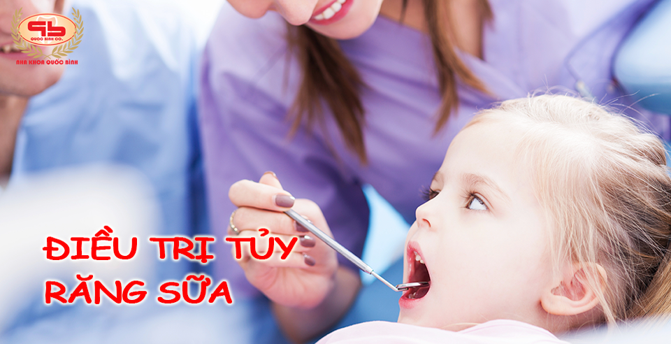 Trẻ em có cần điều trị tủy răng sữa