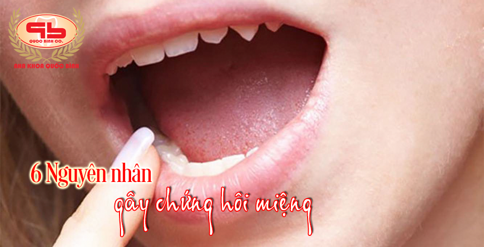 6 Nguyên nhân gây ra chứng hôi miệng mà ít ai nghĩ đến