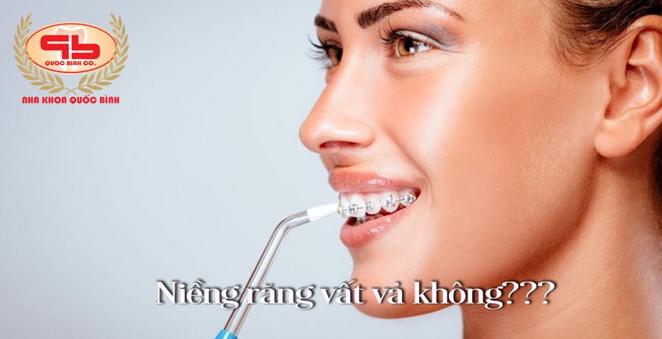 Quá trình niềng răng vất vả lắm không?