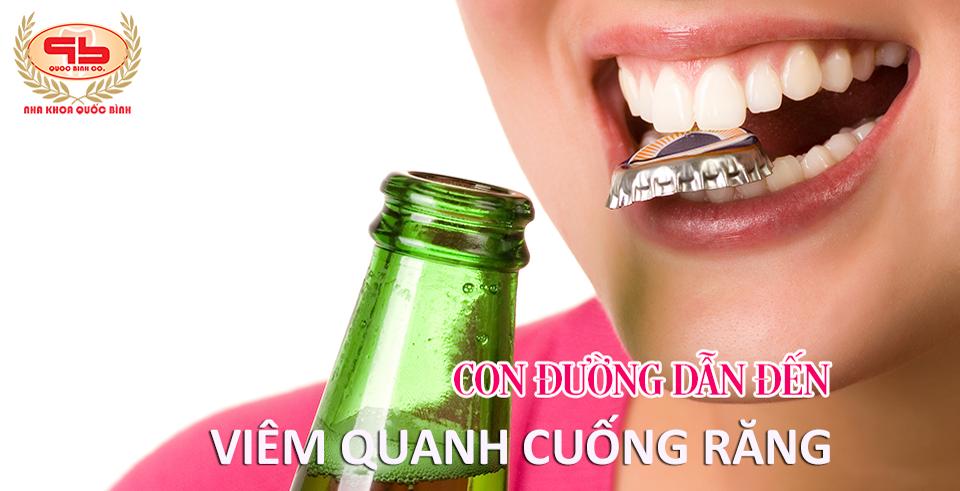 Bạn biết gì về bệnh lý viêm quanh cuống răng?
