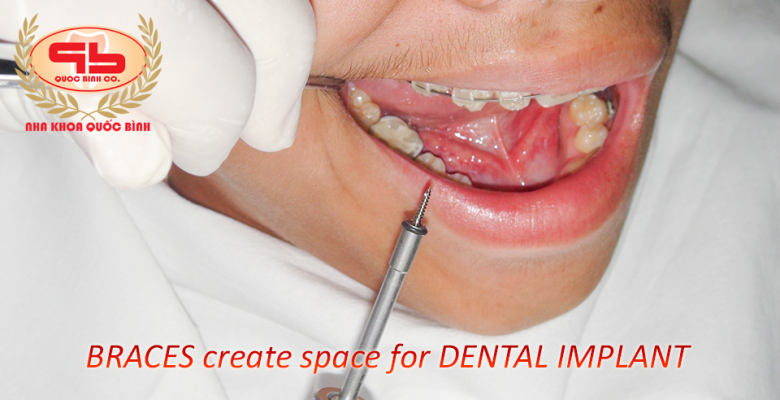 braces create space for dental implants