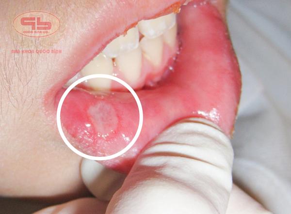 Bệnh nhiệt miệng gây đau và khó chịu