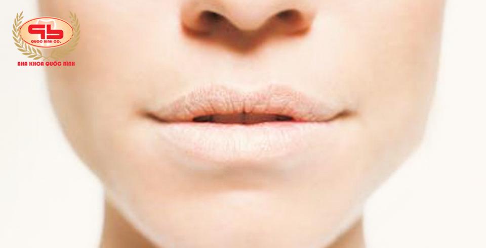 Khô miệng có đáng sợ không?