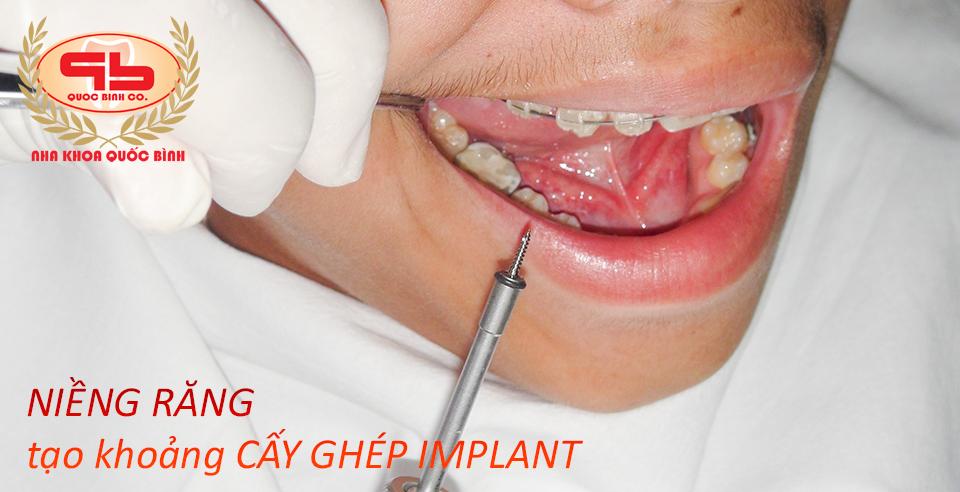 Niềng răng tạo khoảng cấy ghép Implant