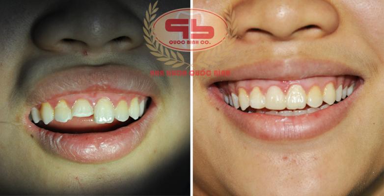 xử lý tình huống răng mẻ tại nhà