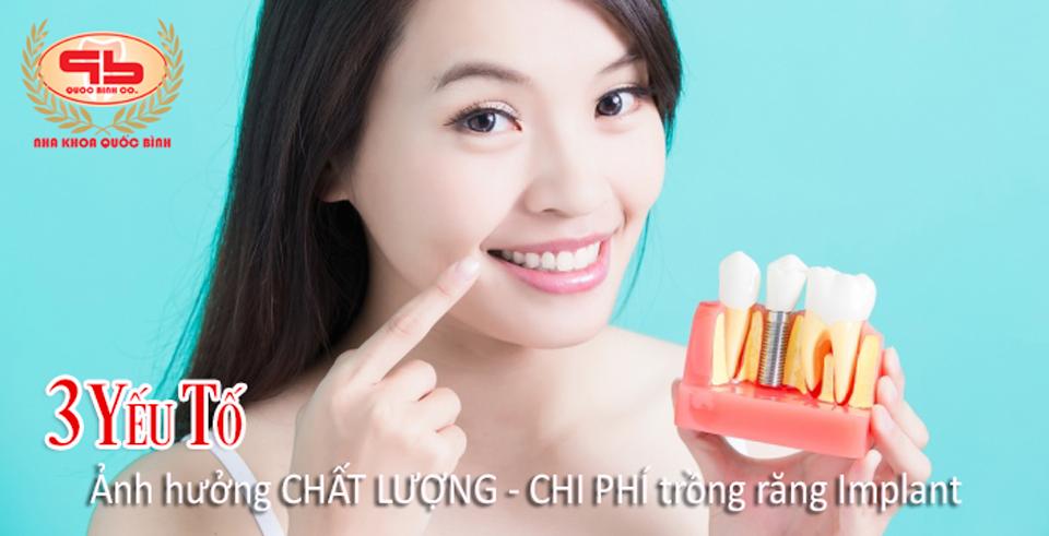 3 yếu tố ảnh hưởng chi phí và chất lượng trồng răng Implant