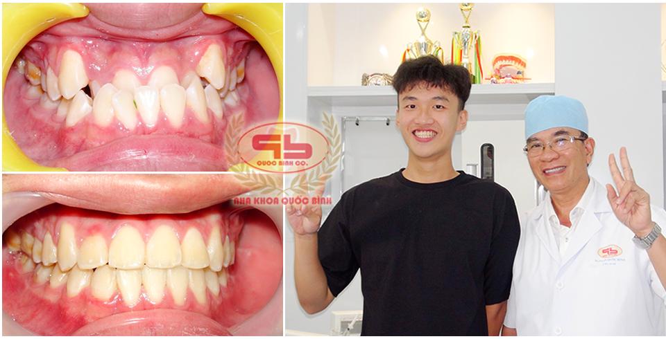 chỉnh răng khấp khểnh bao lâu