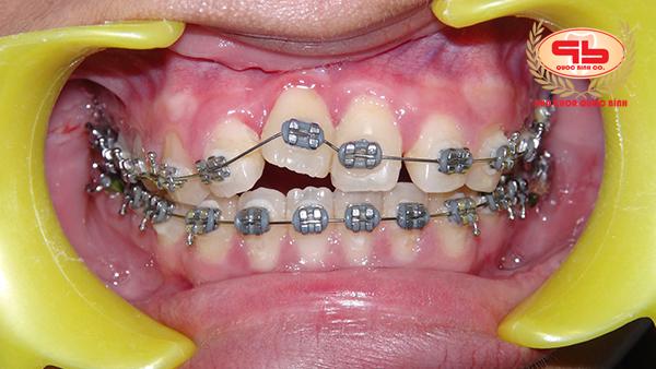Niềng răng cửa có khó không?
