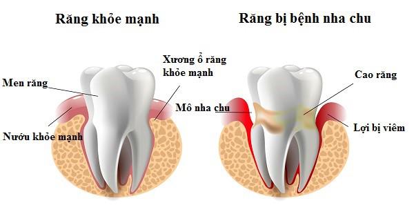 Viêm nha chu là nguyên nhân phổ biến gây ra nguy cơ răng lung lay dẫn đến mất răng