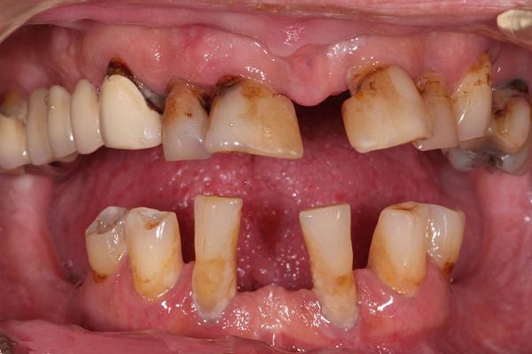 Viêm nha chu có nên trồng răng Implant