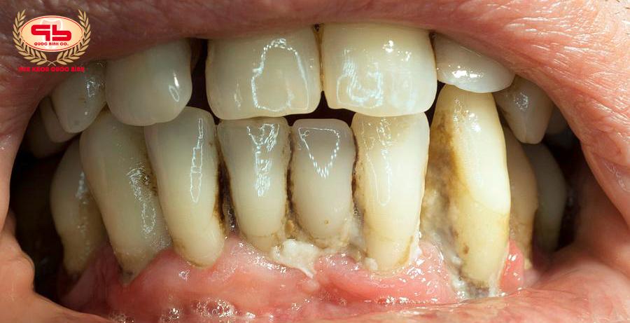 Vôi răng có vô hại như bạn nghĩ?