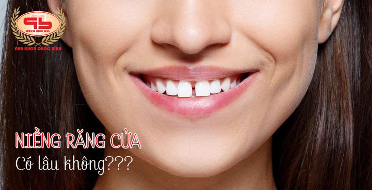Niềng răng cửa có lâu không?