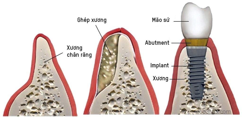 Ghép xương hàm giúp Implant vững ổn