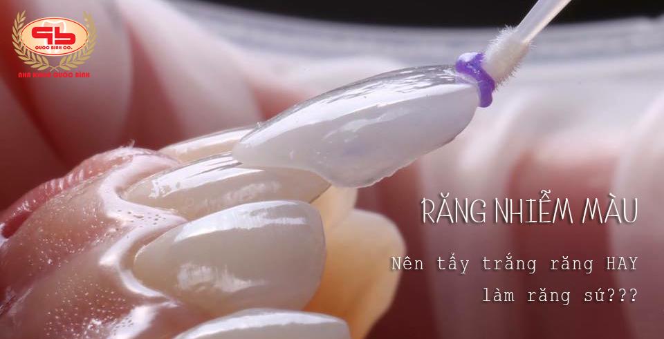 Răng nhiễm màu nên tẩy trắng hay làm răng sứ?