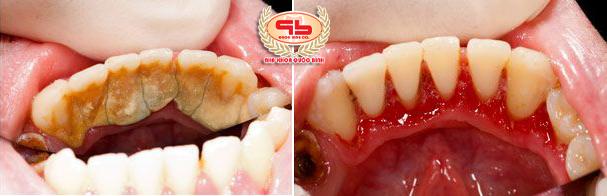 Có nên tự cạo vôi răng tại nhà hay cần đi nha khoa?