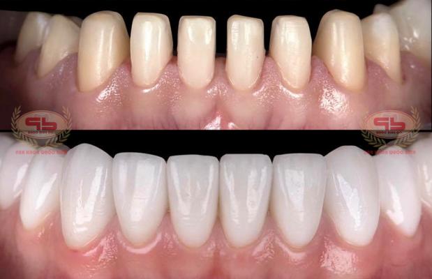 6 Lưu ý khi thẩm mỹ răng sứ dành cho khách hàng Vũng Tàu.