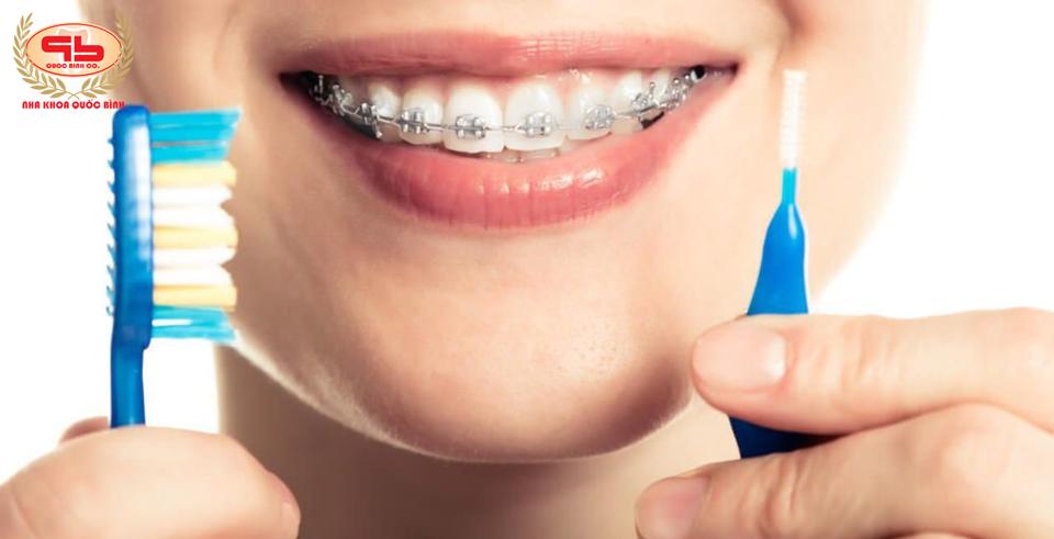 Chỉnh nha niềng răng có làm yếu răng thật hay không?