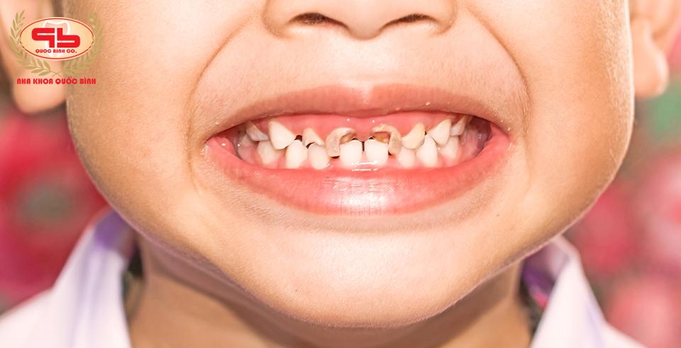 Bệnh răng miệng ở trẻ em thường gặp