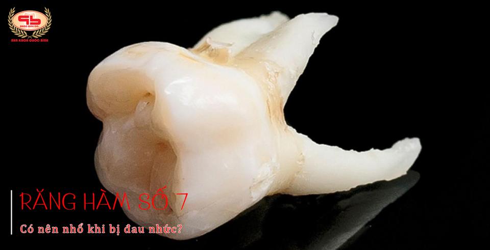 Có nên nhổ răng hàm số 7 khi bị đau nhức không?