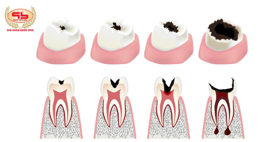 Những biến chứng nguy hại từ sâu răng làm ảnh hưởng sức khỏe nghiêm trọng