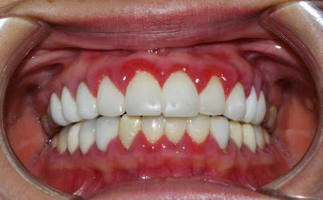 Tại sao răng bọc sứ bị đau?