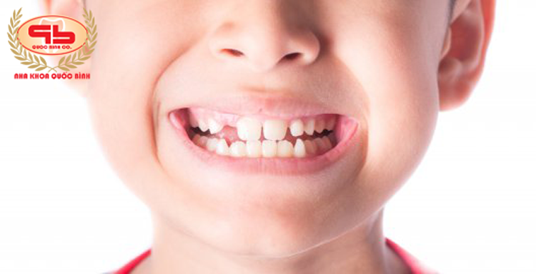 Thiếu răng vĩnh viễn và cách khắc phục