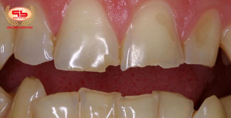 Men răng hư tổn có phục hồi được không?